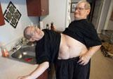 美连体兄弟将迎63岁生日或破纪录