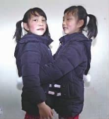 北京赛车开奖记录app:湖南首例存活的连体双胞胎9岁了_妹妹要做眼睑下垂修复术
