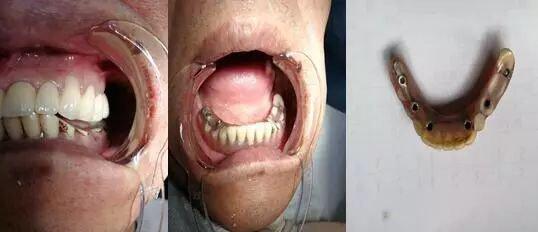 """长沙""""槟榔哥""""十年嚼坏两副牙,种植牙缝里全是槟榔渣"""