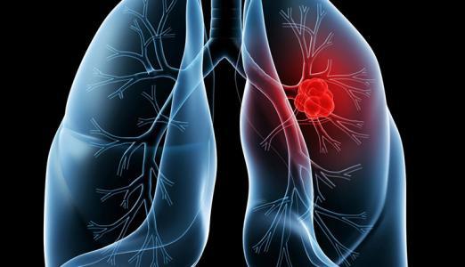 我省每年新增逾15万癌症患者 肺癌居发病率、死亡率首位
