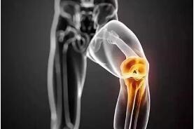 膝盖痛得无法走路 医生提醒这些方法才能保膝!