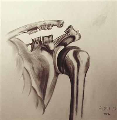 手绘伤痕怎么画