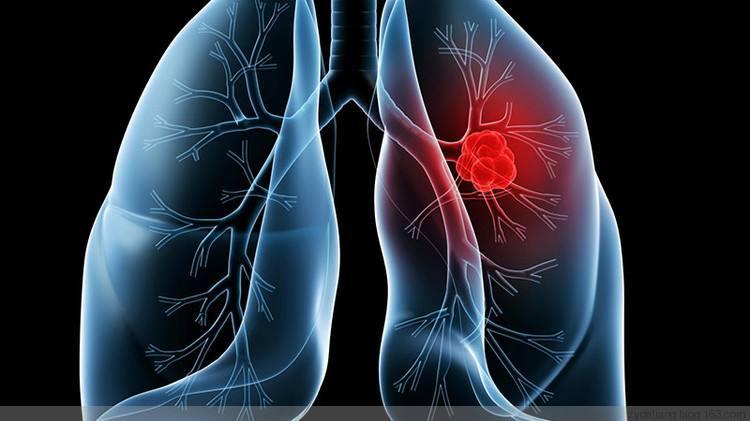 20岁的小伙子,7年烟龄患上肺癌