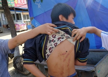 3男子群殴少年 青少年暴力何时休