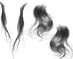 怀化13岁女孩患吃头发怪病 胃内长出巨大结石